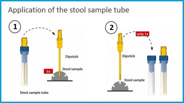 A diagram outlining the process of collecting stool samples with the IDKExtract® Stool Preparation System.